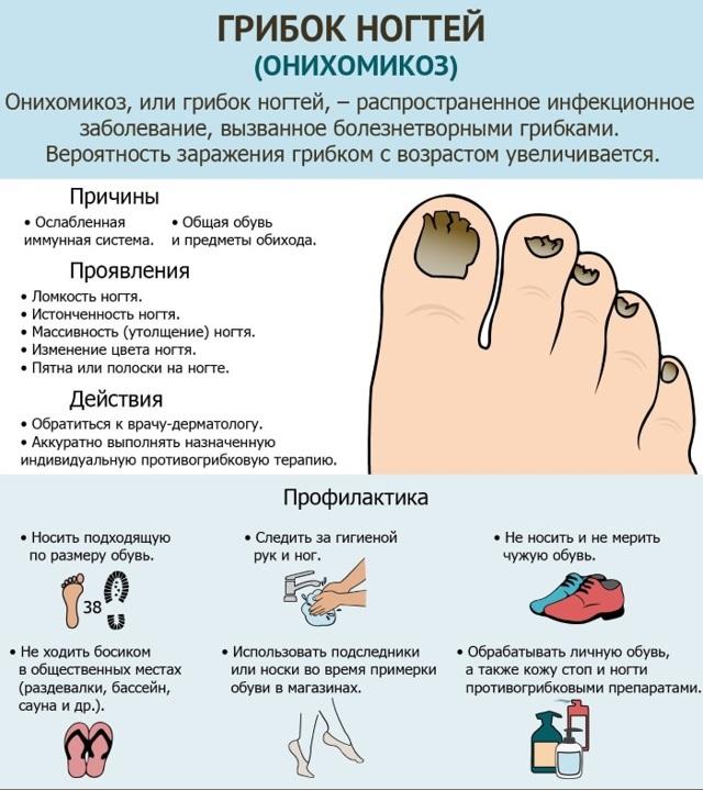 Мазь от грибка между пальцами : названия и способы применения