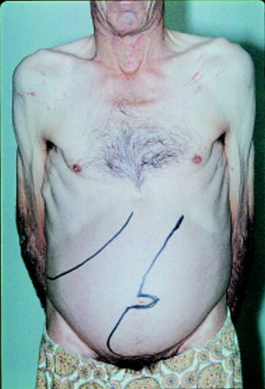 Анемия при миелофтизе: причины, симптомы, диагностика, лечение
