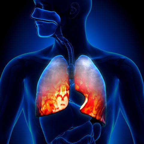 Хроническая эозинофильная пневмония: причины, симптомы, диагностика, лечение