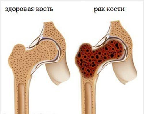 Злокачественные опухоли решетчатой кости: причины, симптомы, диагностика, лечение