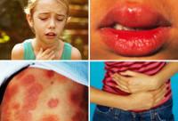 Анафилактический шок : причины, симптомы и диагностика