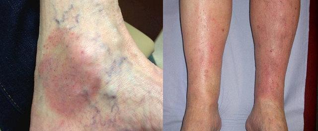 Дерматит ног - и как с ним справиться?
