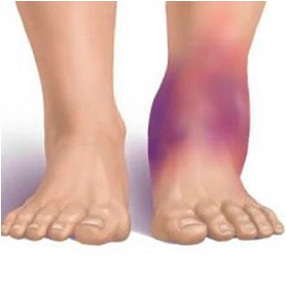Вывих стопы: причины, симптомы, диагностика, лечение