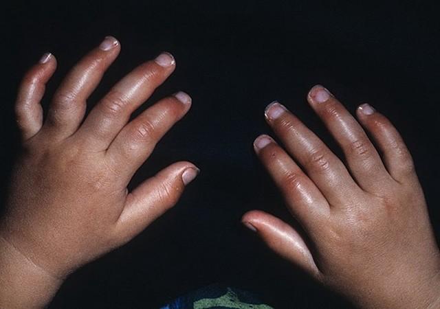Эритромелалгия: причины, симптомы, диагностика, лечение