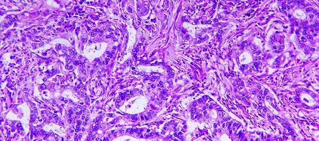 Аденокарцинома желудка : причины, симптомы, диагностика, лечение