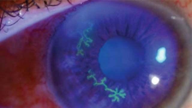 Сифилитический интерстициальный кератит и глаукома
