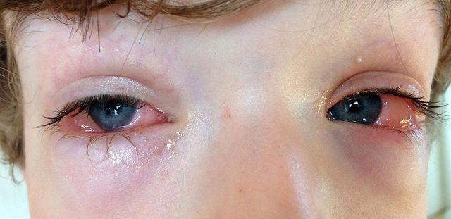 Аллергические заболевания глаз у детей