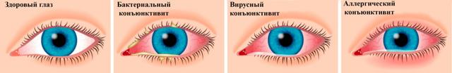 Конъюнктивит, вызванный физическими и химическими раздражителями