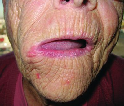 Ангиома кожи : причины, симптомы, диагностика, лечение