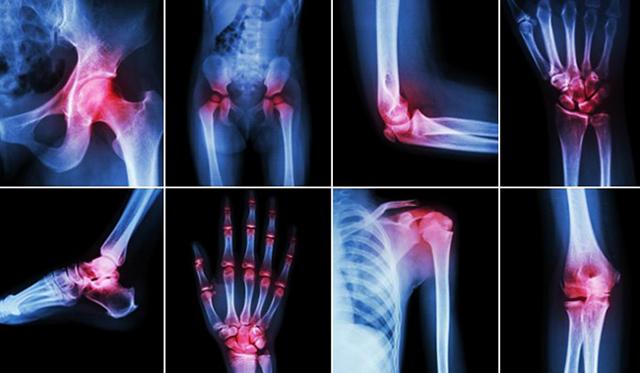 Почему болят суставы и что делать?