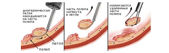Ювенильный полипоз толстой кишки (синдром Вейля)