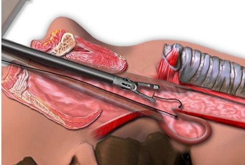 Дивертикулы пищевода: причины, симптомы,диагностика, лечение
