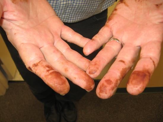 Химический ожог марганцовкой: что делать и как лечить?