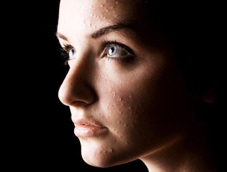 Кольцевидная гранулема: причины, симптомы, диагностика, лечение