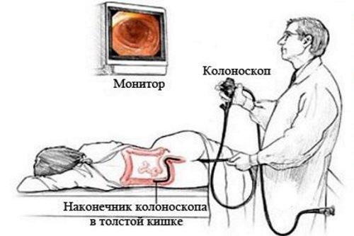 Аномалии толстой кишки: причины, симптомы, диагностика, лечение