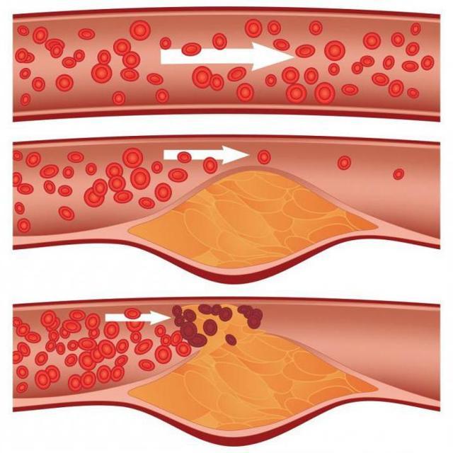Атеросклеротические бляшки : причины, симптомы, диагностика, лечение