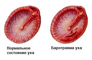 Баротравма уха, легких, глаза: причины, симптомы, диагностика, лечение