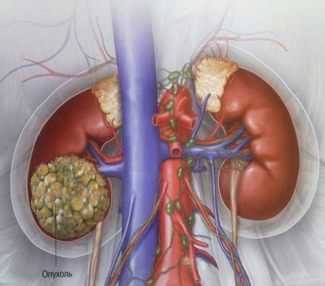 Рак почки - Симптомы и диагностика