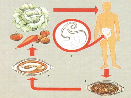 Трихоцефалёз у детей: причины, симптомы, диагностика, лечение