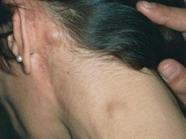 Фолликулярная лимфома : причины, симптомы, диагностика, лечение