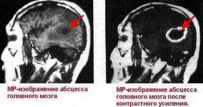 Абсцессы головного и спинного мозга - Причины и патогенез