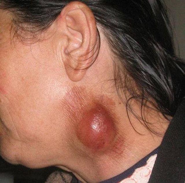 Укусы клещей: симптомы и лечение