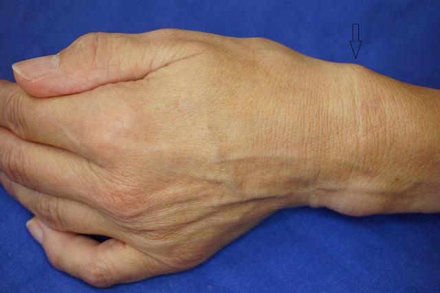 Тендовагинит: причины, симптомы, диагностика, лечение