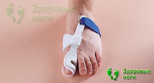 Косточки на ногах: особенности хирургического вмешательства