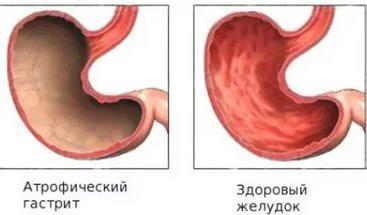Атрофический гастрит : причины, симптомы, диагностика, лечение