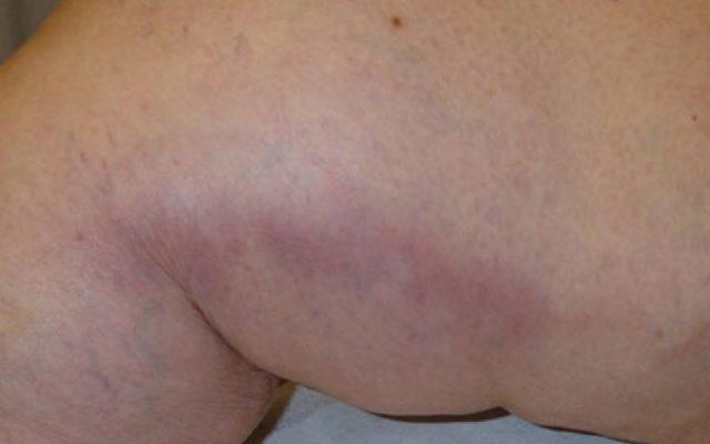 Тромбофлебит нижних конечностей : причины, симптомы, диагностика, лечение
