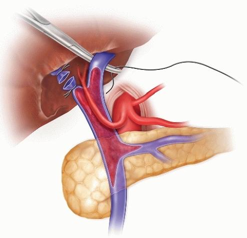 Тромбоз воротной вены: причины, симптомы, диагностика, лечение