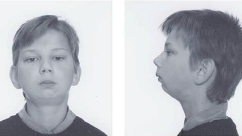 Анкилоз височно-нижнечелюстного сустава: причины, симптомы, диагностика, лечение