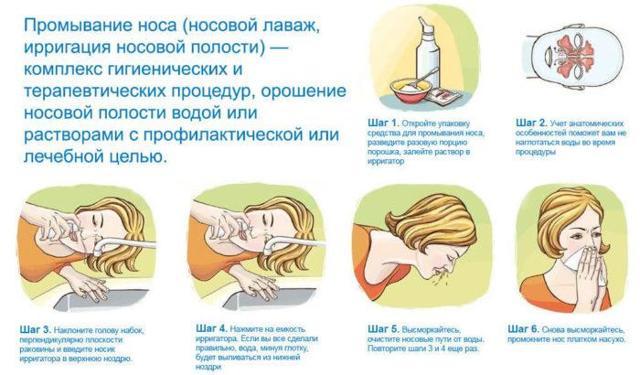 Промывание носа при гайморите : показания и техника проведения
