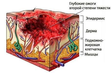 Ожог 2 степени : причины, симптомы, диагностика, лечение