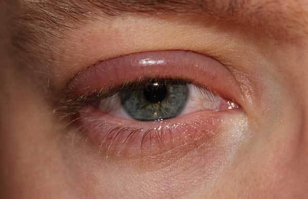 Аллергия на веках: причины, что делать, лечение