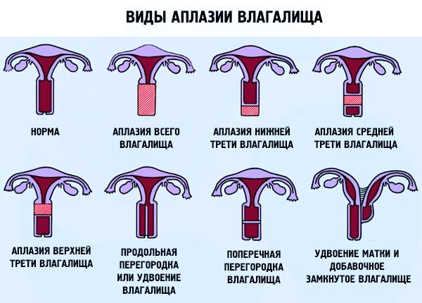 Аплазия матки : причины, симптомы, диагностика, лечение