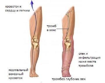 Тромбоз глубоких вен нижних конечностей: общие сведения