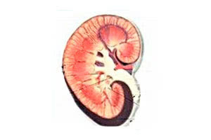 Амилоидоз и поражение почек - Причины и патогенез