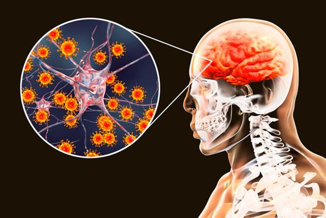 Клещевой энцефалит - Причины и патогенез