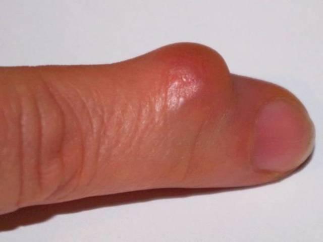Атерома на руке, плече и пальцах рук