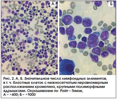 Бактериоскопическое исследование плевральной жидкости и жидкости в перикарде