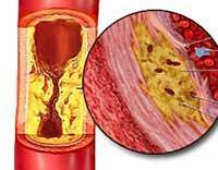 Атеросклероз - Причины и факторы риска