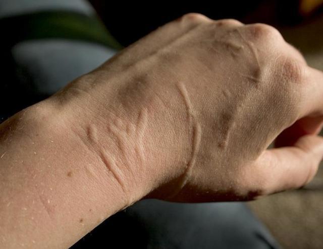 Синдром кошачьей царапины : причины, симптомы, диагностика, лечение