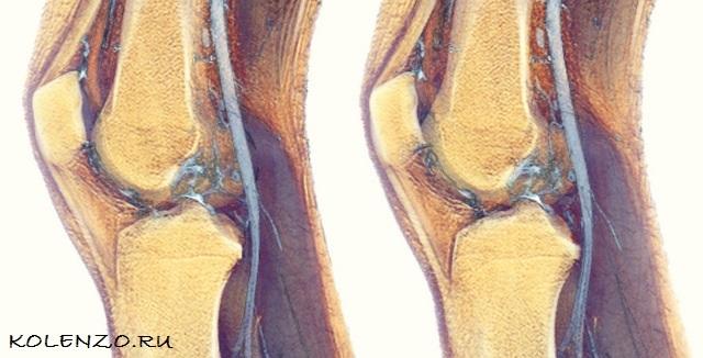 cиновит коленного сустава : причины, симптомы, диагностика, лечение