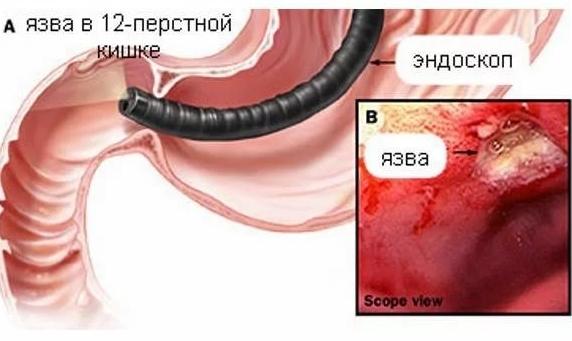 Кровотечения из язвы желудка и 12-перстной кишки