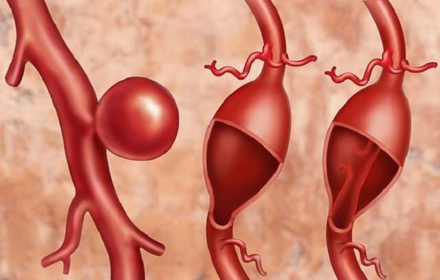 Аневризмы периферических артерий: причины, симптомы, диагностика, лечение