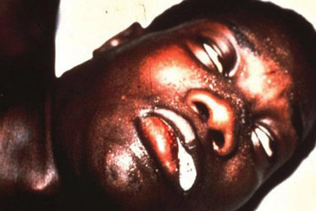 Африканский трипаносомоз (сонная болезнь): причины, симптомы, диагностика, лечение