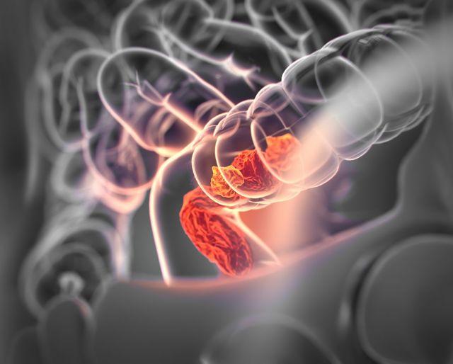 Наследственная неполипозная колоректальная карцинома: причины, симптомы, диагностика, лечение