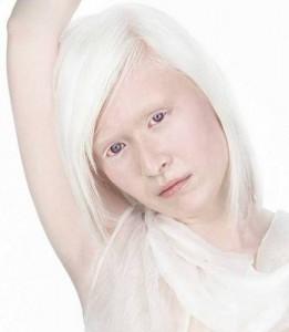 Альбинизм у детей: причины, симптомы, диагностика, лечение