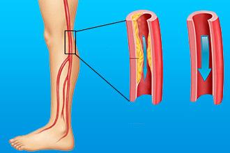 Облитерирующие заболевания нижних конечностей: причины, симптомы, диагностика, лечение